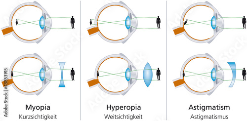 The visual defects Myopia, Hyperopia and Astigmatism and how to correct it with biconcave and biconvex lenses Canvas Print