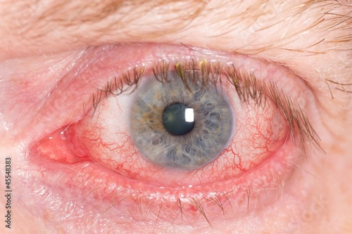 Fotografía  Close up of wide open red and irritated human eye