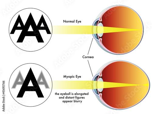 Fotografía  miopia
