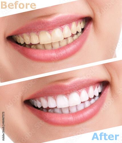 bleaching teeth treatment #46467573