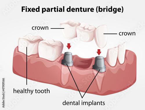 Fixed partial denture bridge #47909566