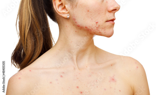 Photo Skin problems