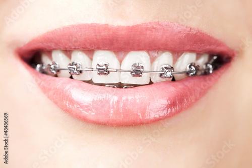 Valokuva  teeth with braces