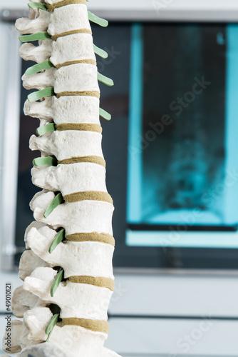Fotografía  wirbelsäule mit röntgenbild