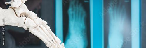 Fotografía  füße auf dem röntgenbild