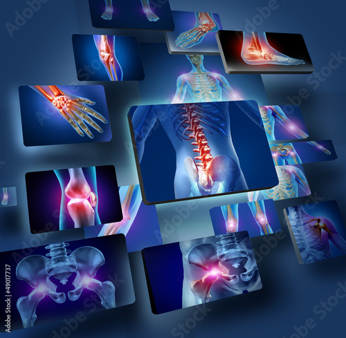 Fotografie, Obraz  Human Joints Concept