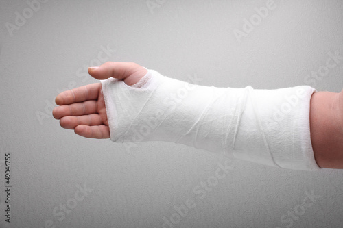 Fotografía  broken arm bone in cast
