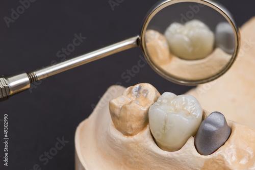 Valokuva  ceramic crown for molar teeth