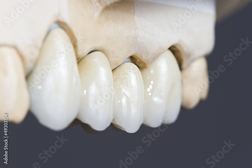 Vászonkép dental ceramic bridge