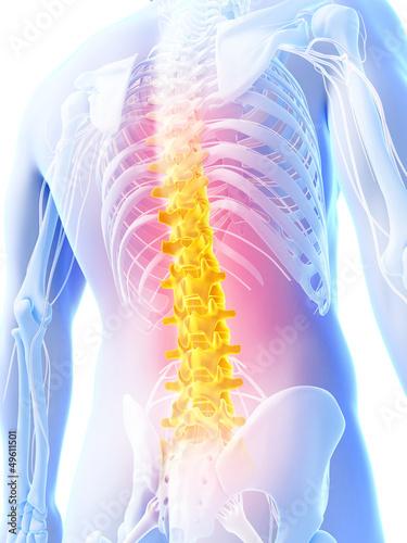 3d-odplacajaca-sie-ilustracja-backache