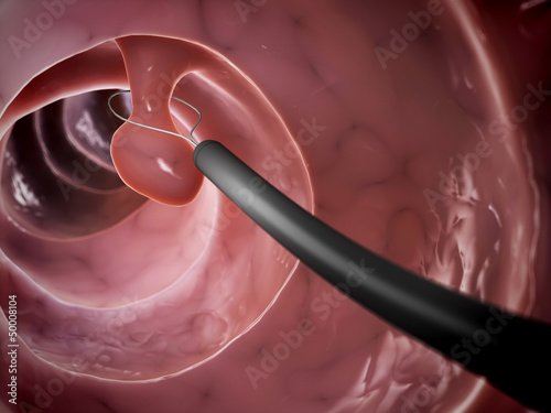 Photo 3d rendered illustration of a polyp removal