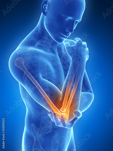 Fotografía  3d rendered illustration of pain in the elbow