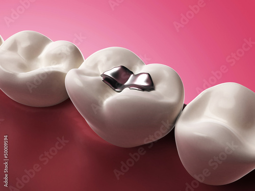 Photo 3d rendered illustration of an amalgam filling