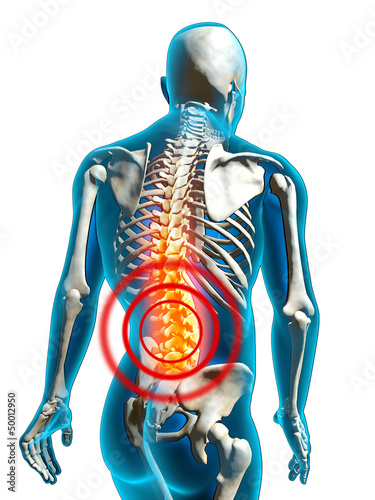 Fotografía  human back pain rückenschmerzen freisteller