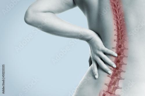 Plakat  Frau mit Schmerzen in der Wirbelsäule