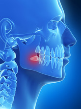 3d Rendered Illustration Of The Wisdom Teeth