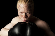 Albino Boxer