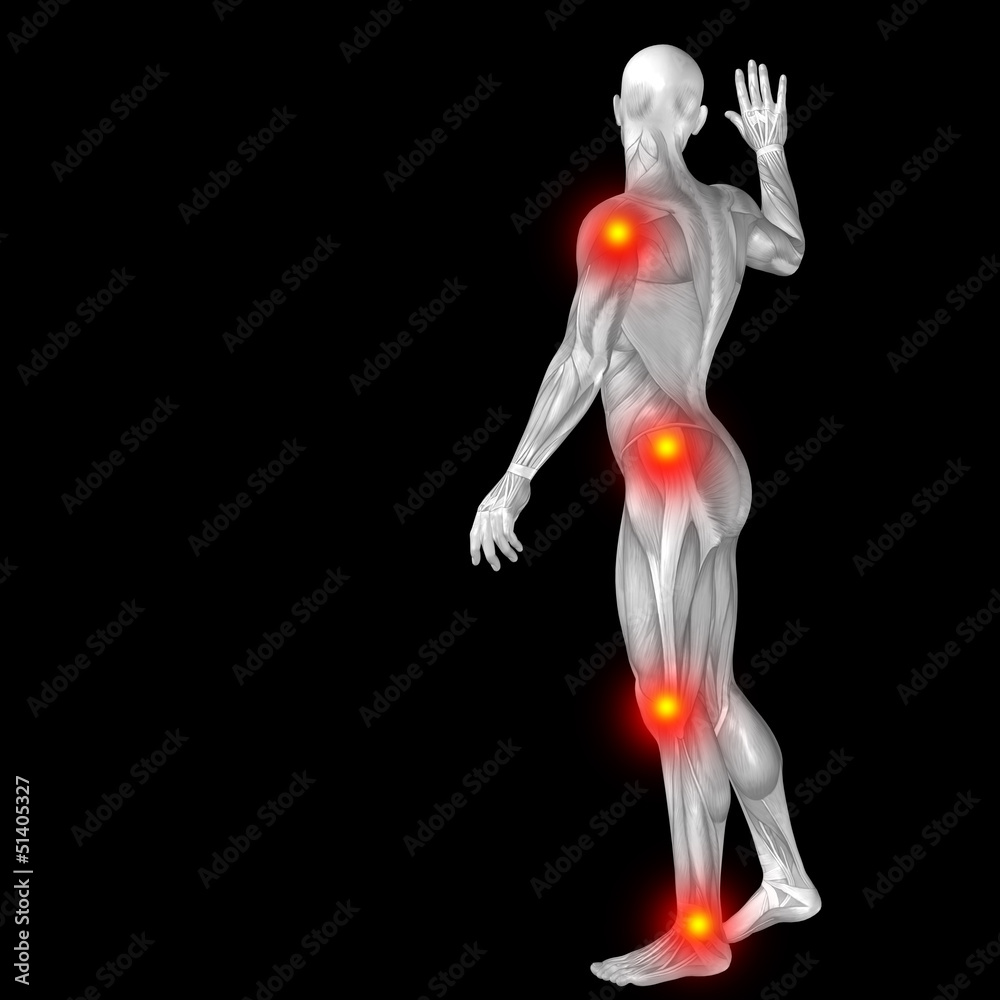 High Resolution Conceptual 3d Human Anatomy Body With Pain Foto
