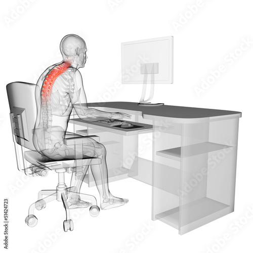 Fotografía  3d rendered medical illustration - wrong sitting posture
