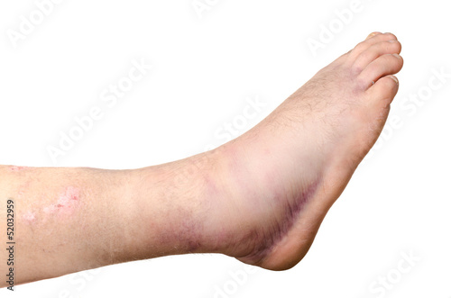 Photo Broken ankle of a person isolated on white background