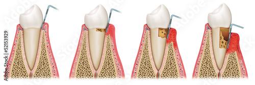 Fotografía  secuencia de gingivitis