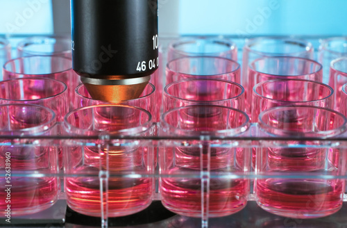 Foto  microscopic analysis