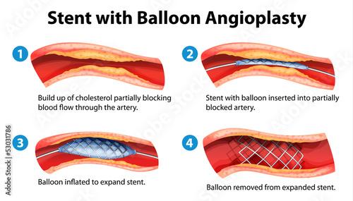 Photo Stent angioplasty procedure