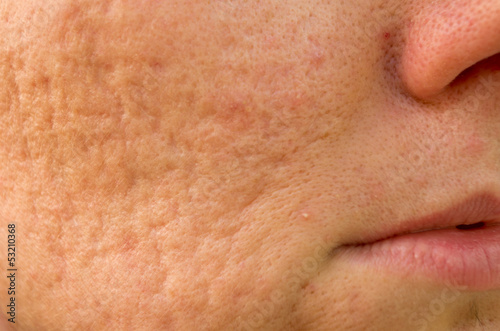 Photo problematic skin with acne scars