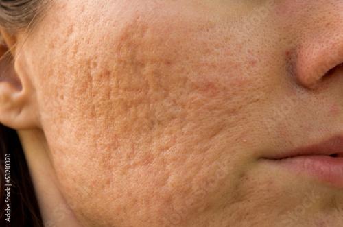 acne scars Wallpaper Mural