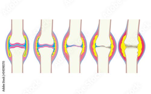 Photo 関節の変形過程