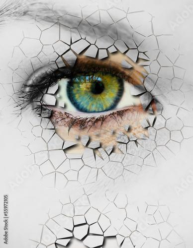 Cracked skin - 55972105