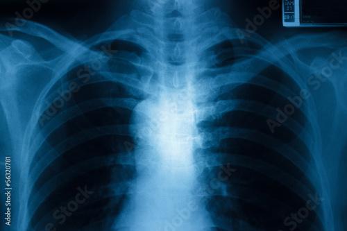 Chest x-ray – kaufen Sie dieses Foto und finden Sie ähnliche Bilder ...
