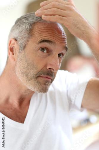 Senior man and hair loss issue Canvas Print