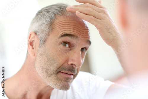 Photo Senior man and hair loss issue