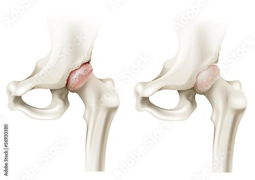 Photo Hip arthritis