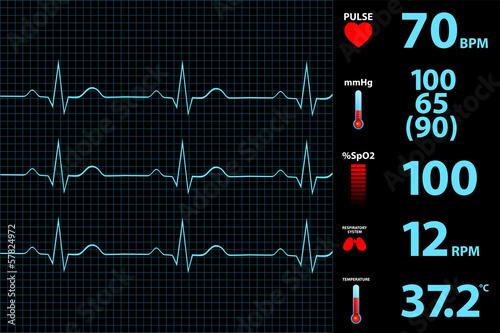 Canvastavla Modern Electrocardiogram Monitor Display