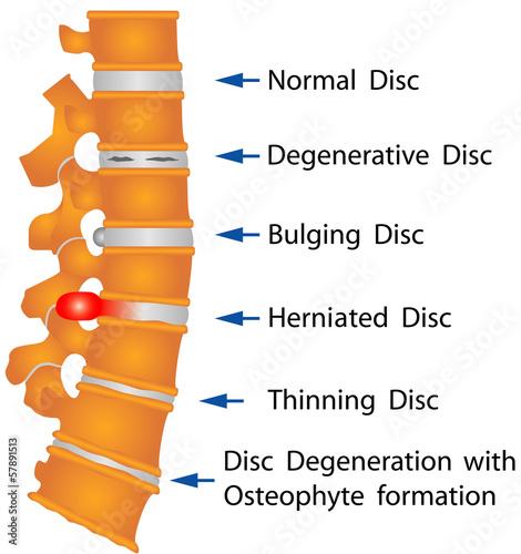 Fotografía  Spine. Spine conditions
