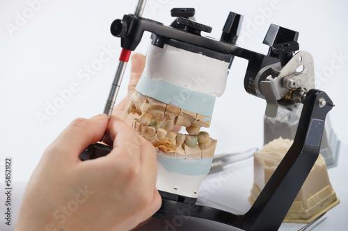 Dental technician working with articulator in dental laboratory Fototapet