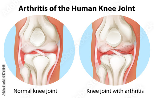 Fotografiet  Arthritis of the human knee joint