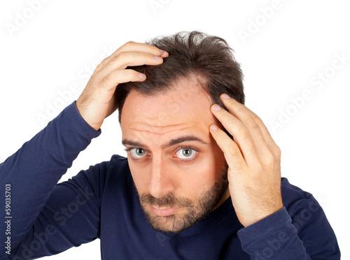 Photo Man controls hair loss