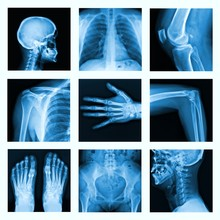 Collage Of Many X-rays In Very...