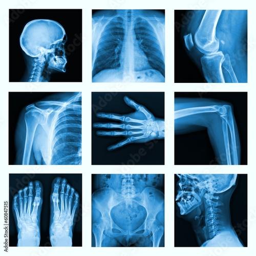 Fotografie, Obraz  Koláž z mnoha rentgenového záření ve velmi dobré kvalitě.