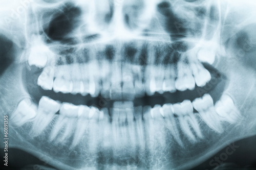 Fotografie, Obraz  X-ray image of teeth and mouth with four molars