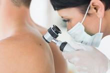 Dermatologist Examining Mole O...
