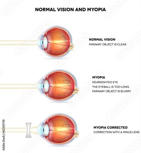 Fotografía Myopia and normal vision. Myopia is being shortsighted.