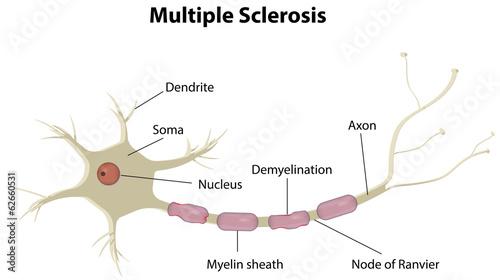 Poster Kids Multiple Sclerosis
