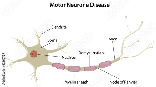 Poster Kids Motor Neurone Disease