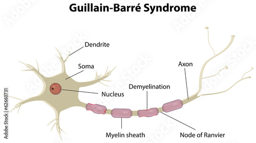Poster Kids Guillain-Barré Syndrome