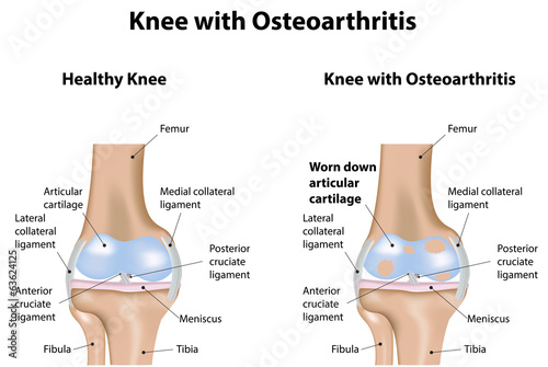 Diagram Of Knee Joint | Knee Joint With Osteoarthritis Diagram Buy This Stock Illustration