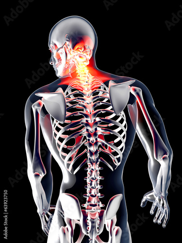 anatomia-bol-plecow